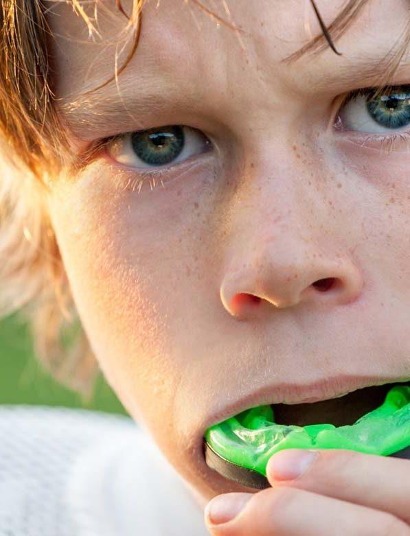 Προστασία των δοντιών όσοι αθλούνται
