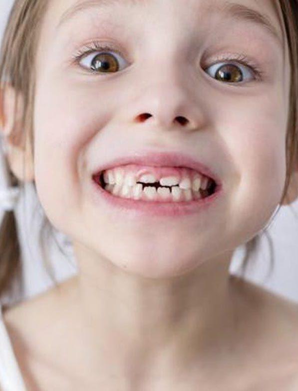 Τραυματισμός παιδικού δοντιού, τι κάνουμε;
